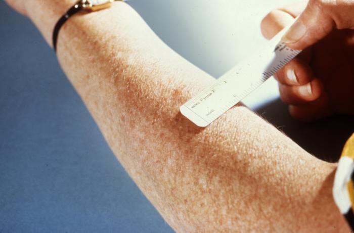 An arm with a TB test