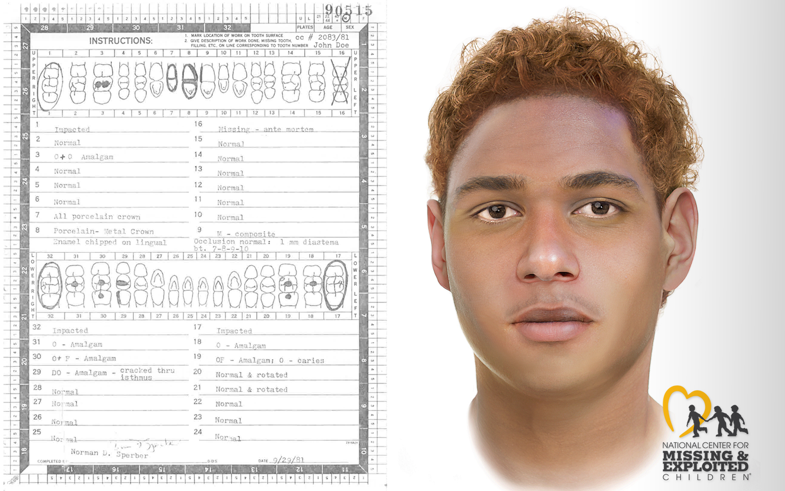 Dental record and police sketch of unidentified man