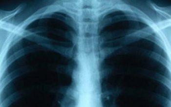 Tuberculosis_6